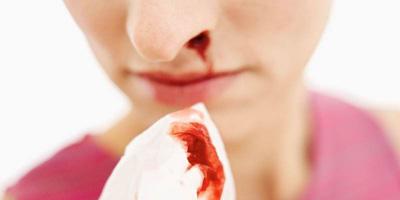 چرا بزرگسالان خون دماغ میشوند؟