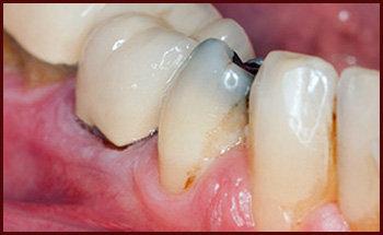 آشنایی با 4 عامل پوسیدگی دندان