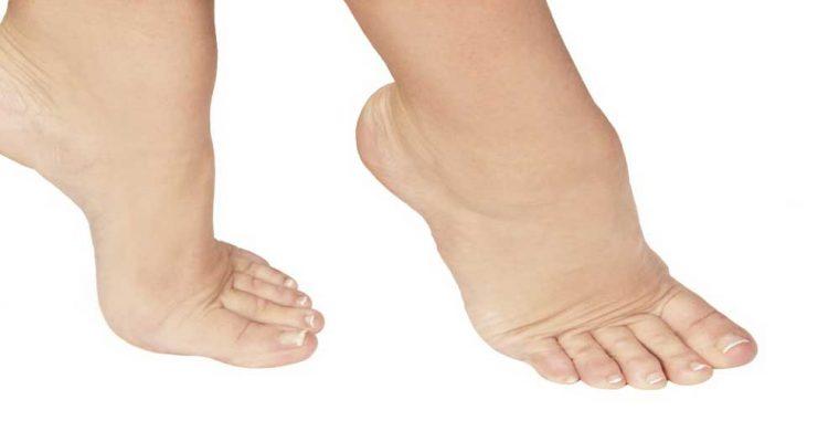 با وجود این علائم ورم پا را جدی بگیرید