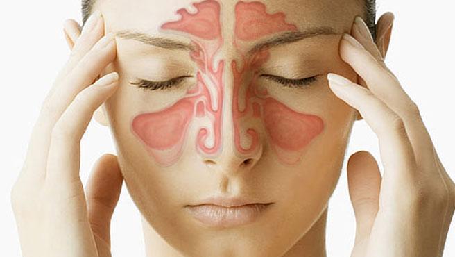 نشانه های التهاب سینوس و پیشگیری از سینوزیت